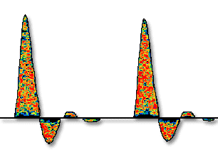 Spectral Doppler of Physiologic Machines