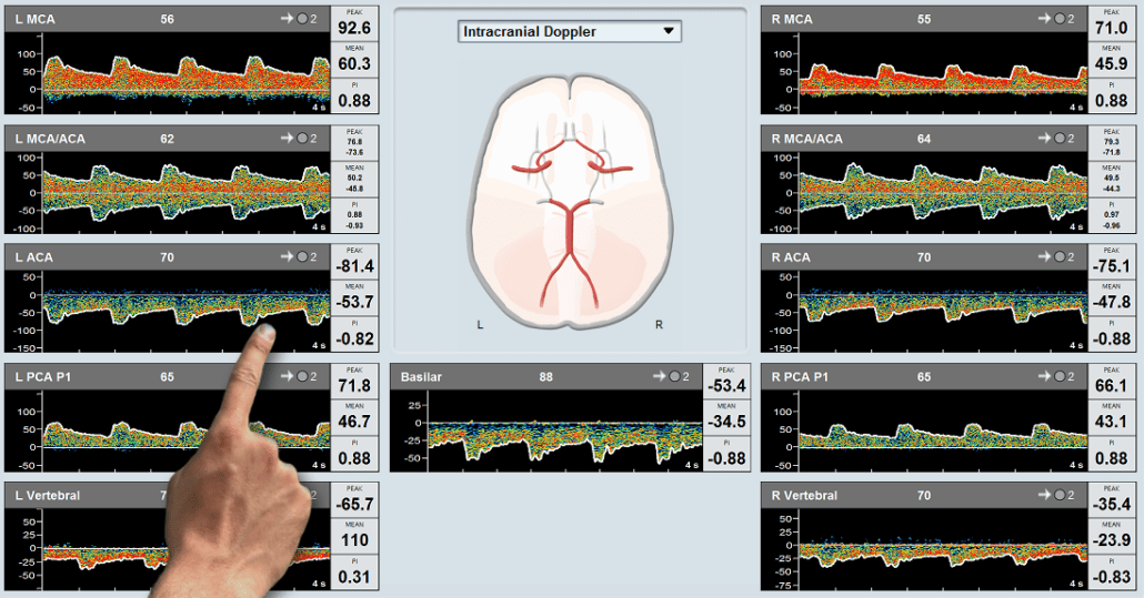 Transcranial Doppler Summary Screen with Touch Screen support