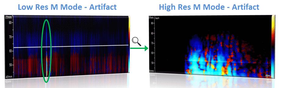 HITS Detection - Artifact Analysis