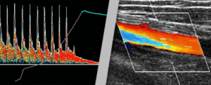 Peripheral Vascular Diagnostic Devices Complement Ultrasound Imaging