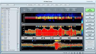 Patent Foramen Ovale (PFO) Dolphin Screen