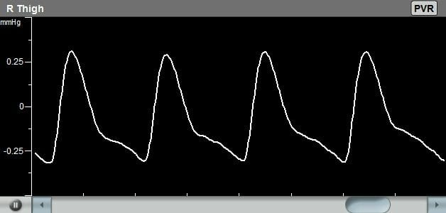 Example of a Pulse Volume Recording (PVR) Waveform