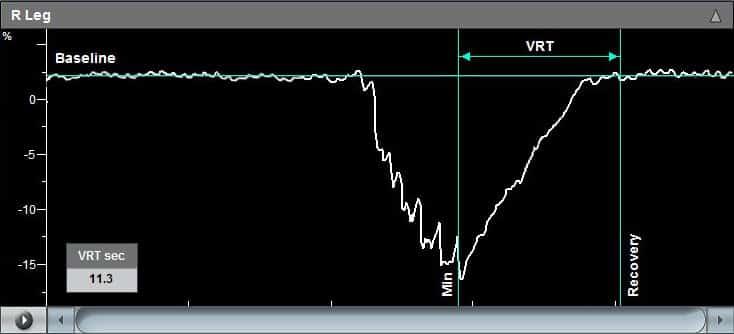 Viasonix Falcon PVD - Venous Reflux Graph
