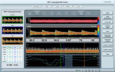 Vasomotor Reactivity (VMR) Dolphin Screen